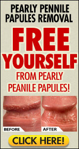 Pearly Penile Papules Removal